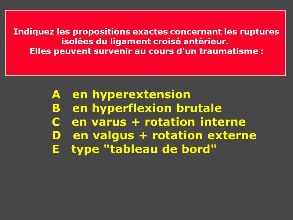 Indiquez les propositions exactes concernant les ruptures isolées du ligament croisé antérieurs.