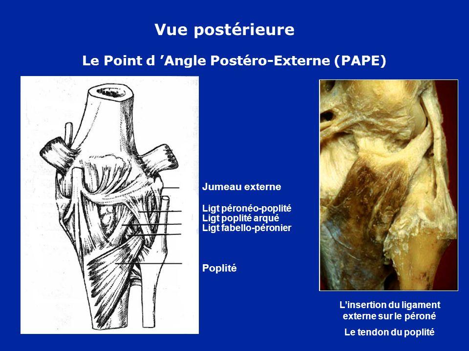 Trochlée fémorale Plica infrapatellaire Ligament adipeux Vue antérieure Rotule retournée Document F Bonnel