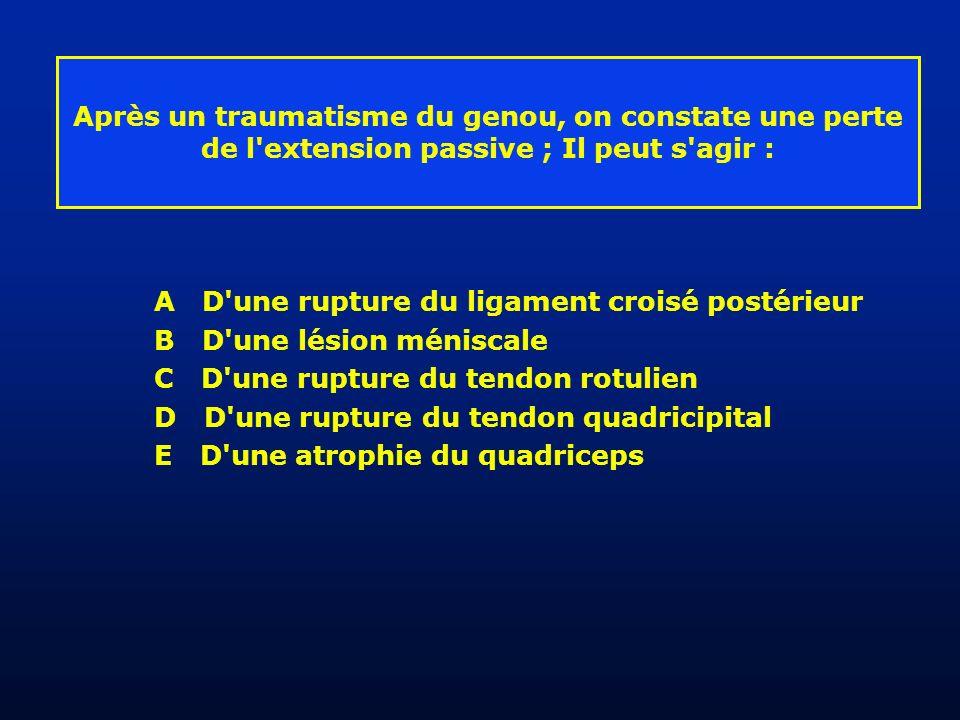 Après un traumatisme du genou, on constate une perte de l extension passive ; Il peut s agir : A D une rupture du ligament croisé postérieur B D une lésion méniscale C D une rupture du tendon rotulien D D une rupture du tendon quadricipital E D une atrophie du quadriceps