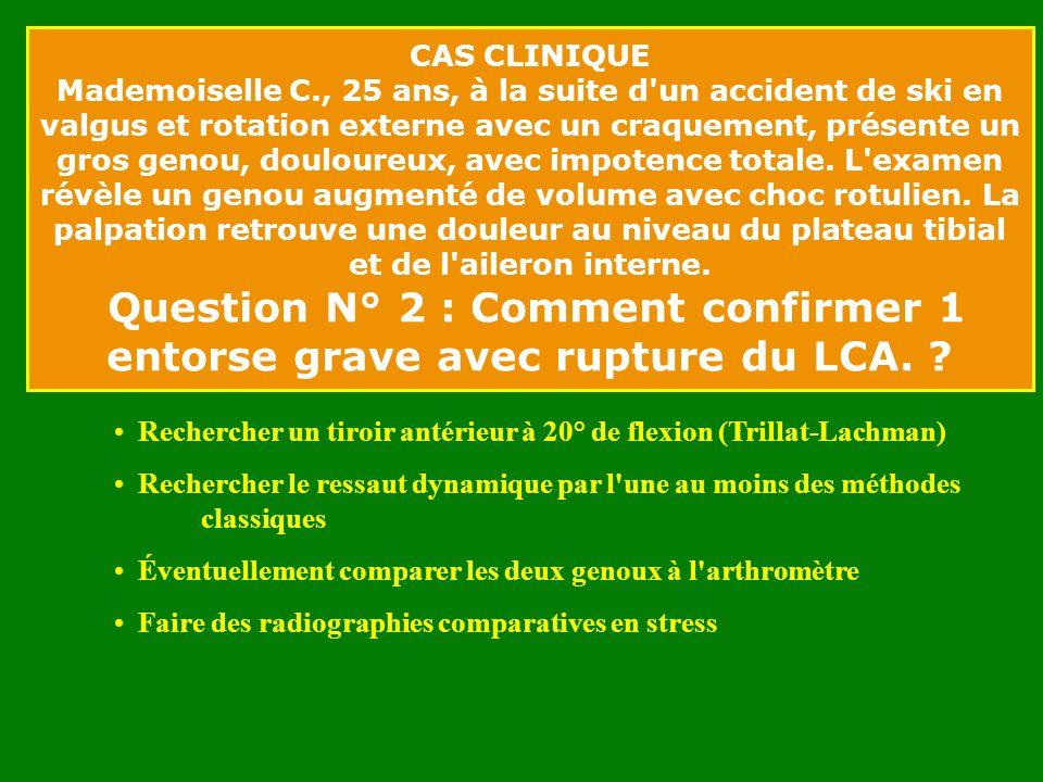 CAS CLINIQUE Mademoiselle C., 25 ans, à la suite d un accident de ski en valgus et rotation externe avec un craquement, présente un gros genou, douloureux, avec impotence totale.