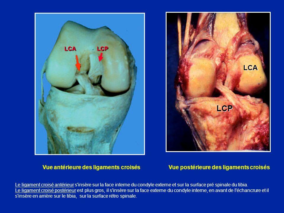 Face externe de la cuisse Tenseur du fascia lata Bandelette ilio-tibiale Biceps Document F Bonnel