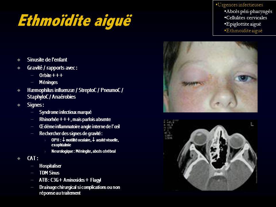 Ethmoïdite aiguë Sinusite de lenfant Gravité / rapports avec : – Orbite +++ – Méninges Hæmophilus influenzæ / StreptoC / PneumoC / StaphyloC / Anaérob