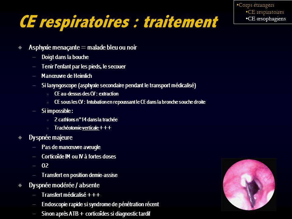 CE respiratoires : traitement Asphyxie menaçante = malade bleu ou noir – Doigt dans la bouche – Tenir lenfant par les pieds, le secouer – Manœuvre de