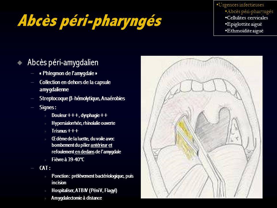 Abcès péri-pharyngés Abcès péri-amygdalien – « Phlegmon de lamygdale » – Collection en dehors de la capsule amygdalienne – Streptocoque -hémolytique,