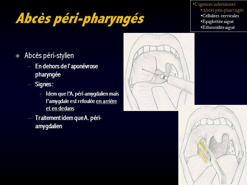 Abcès péri-pharyngés Abcès péri-stylien – En dehors de laponévrose pharyngée – Signes : » Idem que lA. péri-amygdalien mais lamygdale est refoulée en