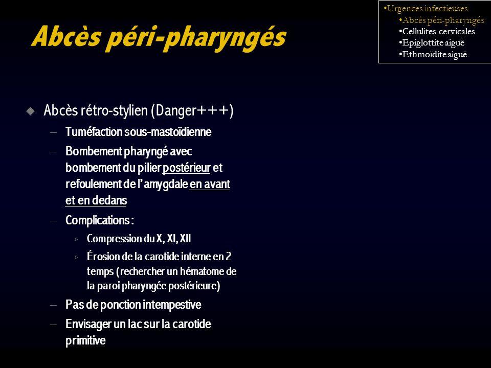 Abcès péri-pharyngés Abcès rétro-stylien (Danger+++) – Tuméfaction sous-mastoïdienne – Bombement pharyngé avec bombement du pilier postérieur et refou