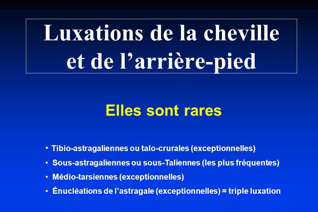 Luxations de la cheville et de larrière-pied Elles sont rares Tibio-astragaliennes ou talo-crurales (exceptionnelles) Sous-astragaliennes ou sous-Tali