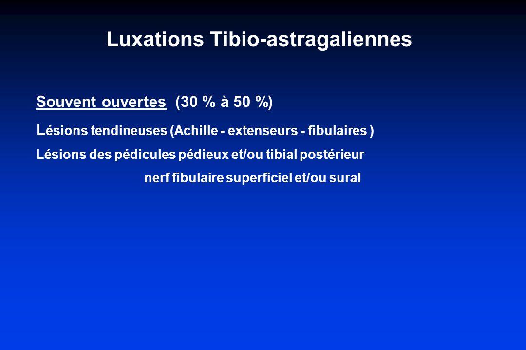 Souvent ouvertes (30 % à 50 %) L ésions tendineuses (Achille - extenseurs - fibulaires ) Lésions des pédicules pédieux et/ou tibial postérieur nerf fi