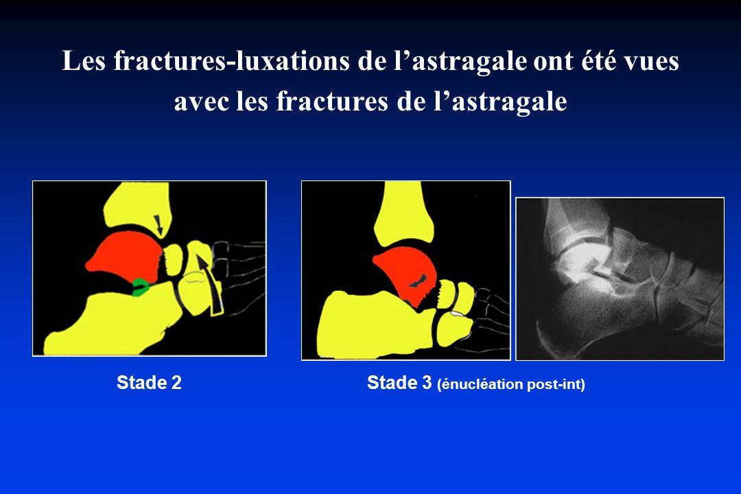 Stade 2 Stade 3 (énucléation post-int) Les fractures-luxations de lastragale ont été vues avec les fractures de lastragale