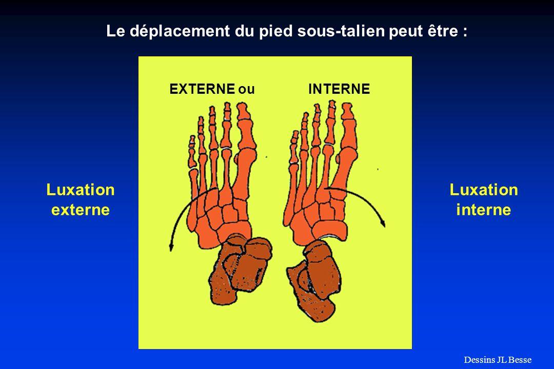 Le déplacement du pied sous-talien peut être : EXTERNE ou INTERNE Luxation externe Luxation interne Dessins JL Besse