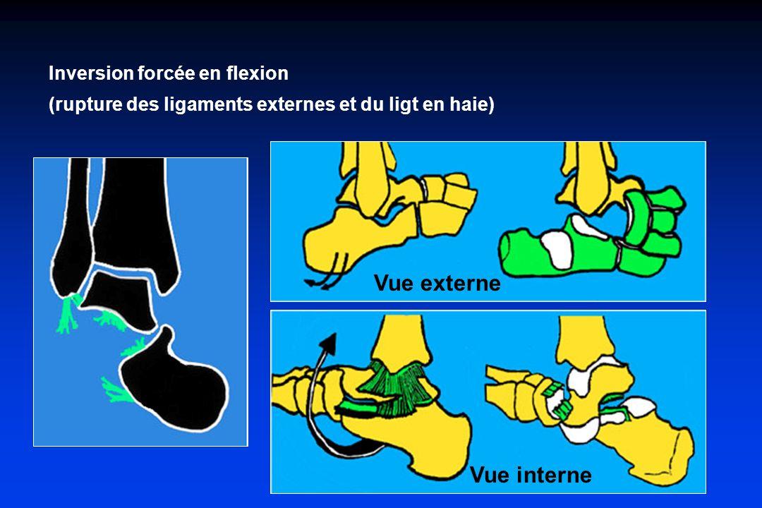 Inversion forcée en flexion (rupture des ligaments externes et du ligt en haie) Vue externe Vue interne