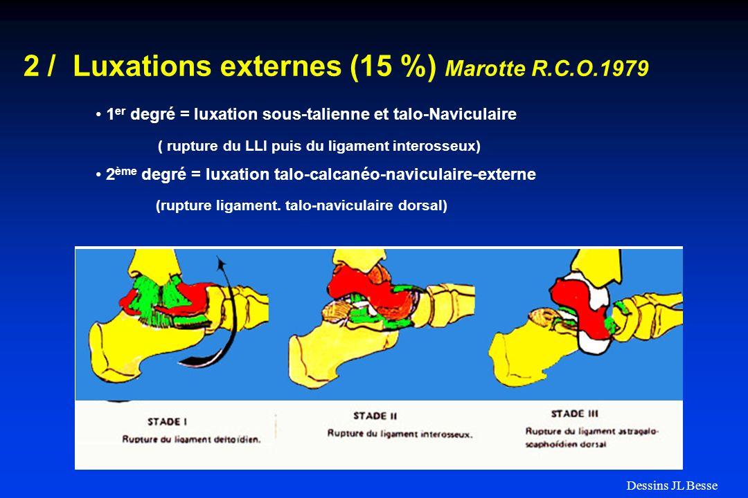 1 er degré = luxation sous-talienne et talo-Naviculaire ( rupture du LLI puis du ligament interosseux) 2 ème degré = luxation talo-calcanéo-naviculair