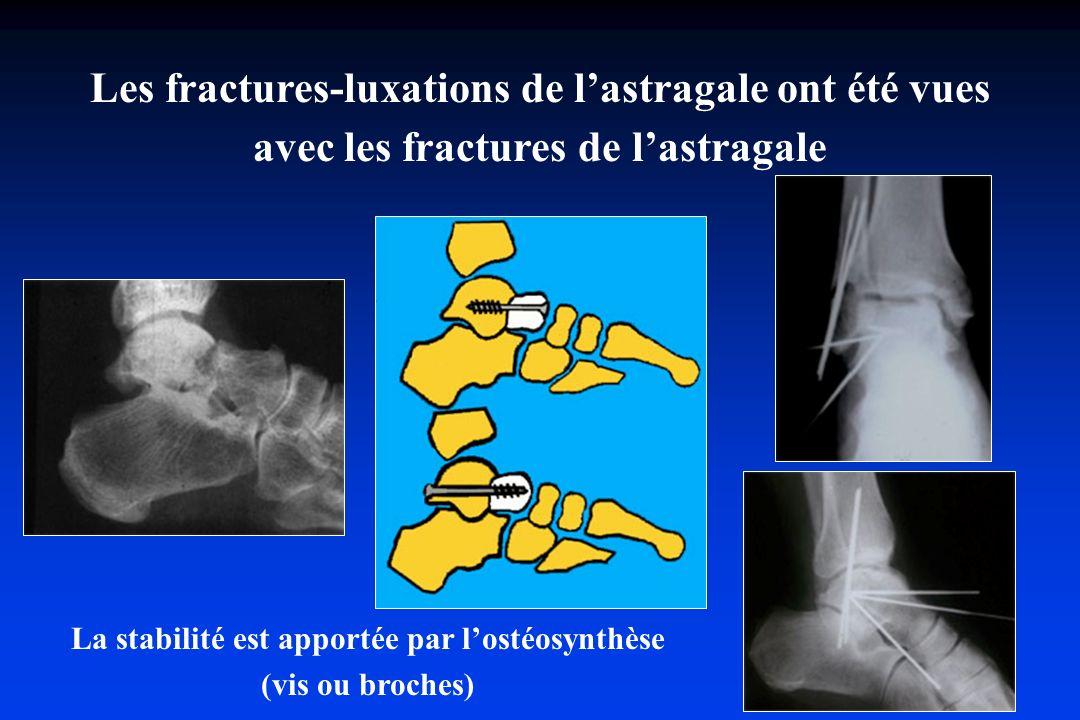 La stabilité est apportée par lostéosynthèse (vis ou broches) Les fractures-luxations de lastragale ont été vues avec les fractures de lastragale