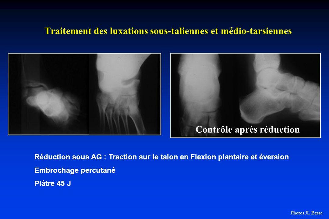Traitement des luxations sous-taliennes et médio-tarsiennes Contrôle après réduction Réduction sous AG : Traction sur le talon en Flexion plantaire et