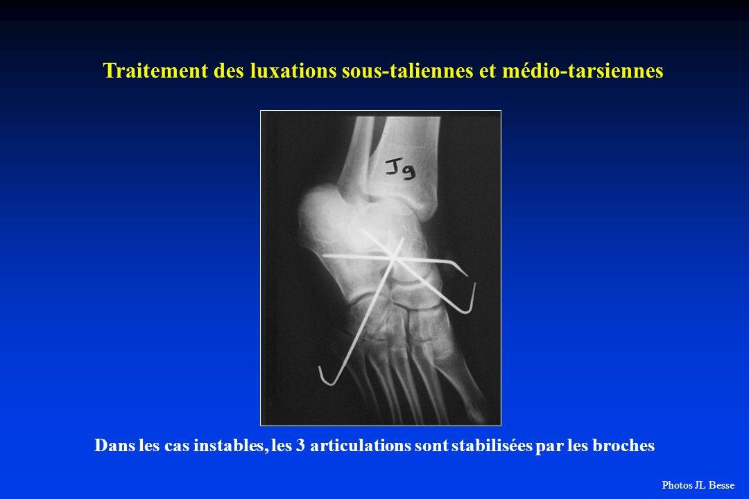 Dans les cas instables, les 3 articulations sont stabilisées par les broches Traitement des luxations sous-taliennes et médio-tarsiennes Photos JL Bes