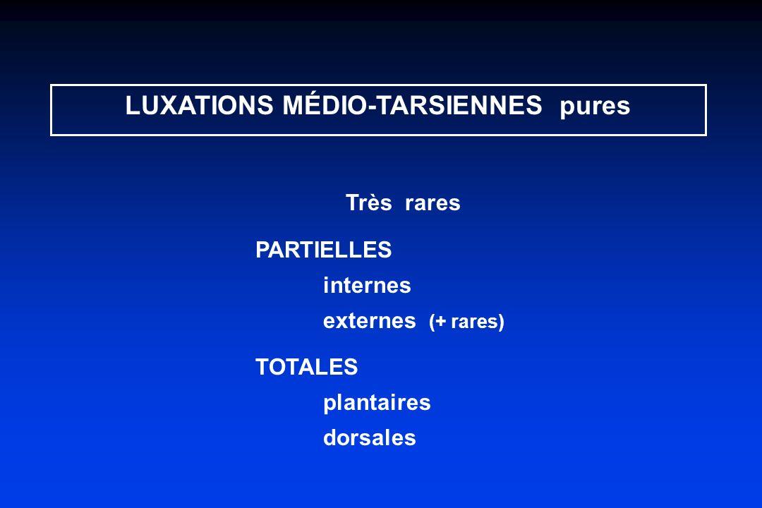 LUXATIONS MÉDIO-TARSIENNES pures Très rares PARTIELLES internes externes (+ rares) TOTALES plantaires dorsales