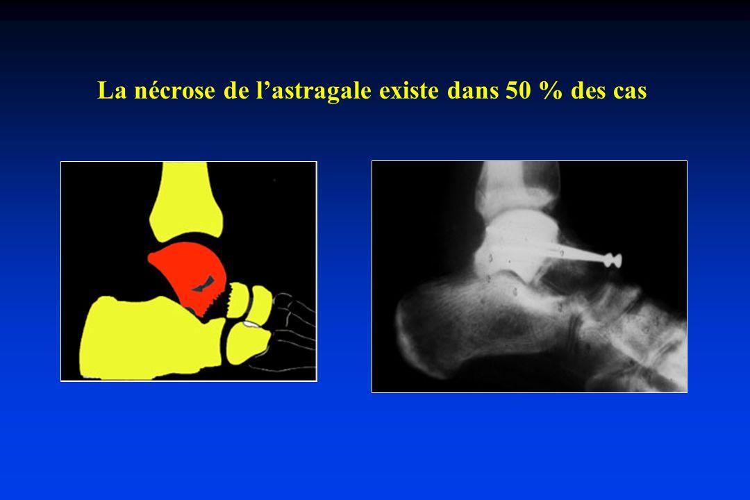 Traumatismes violents (flexion plantaire + torsion de la cheville) Plusieurs formes de luxations : - interne - postérieure - antéro-supérieure - externe Exemple de luxation interne Luxations Tibio-astragaliennes