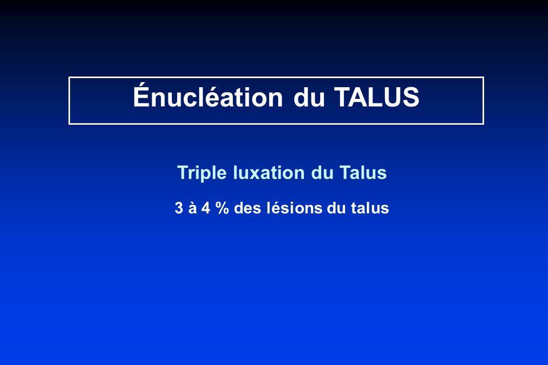 Énucléation du TALUS Triple luxation du Talus 3 à 4 % des lésions du talus