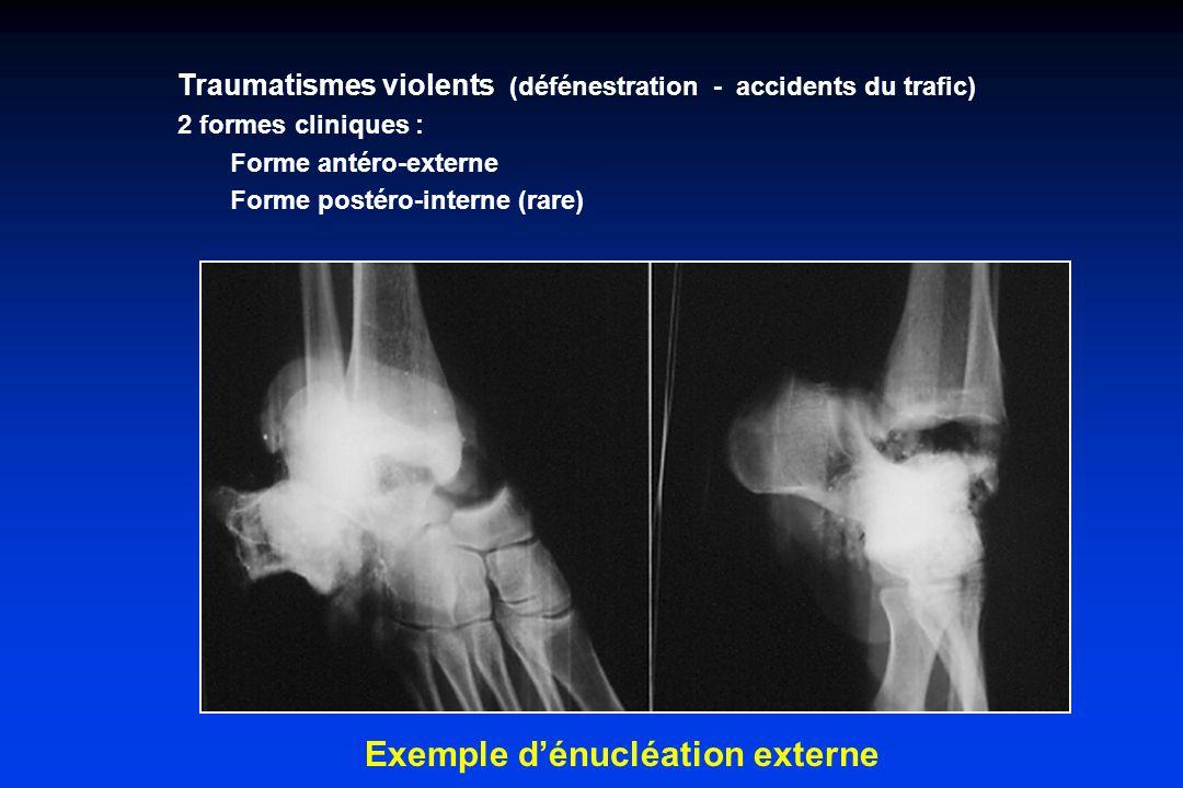 Traumatismes violents (défénestration - accidents du trafic) 2 formes cliniques : Forme antéro-externe Forme postéro-interne (rare) Exemple dénucléati
