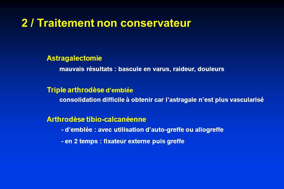 2 / Traitement non conservateur Astragalectomie mauvais résultats : bascule en varus, raideur, douleurs Triple arthrodèse demblée consolidation diffic