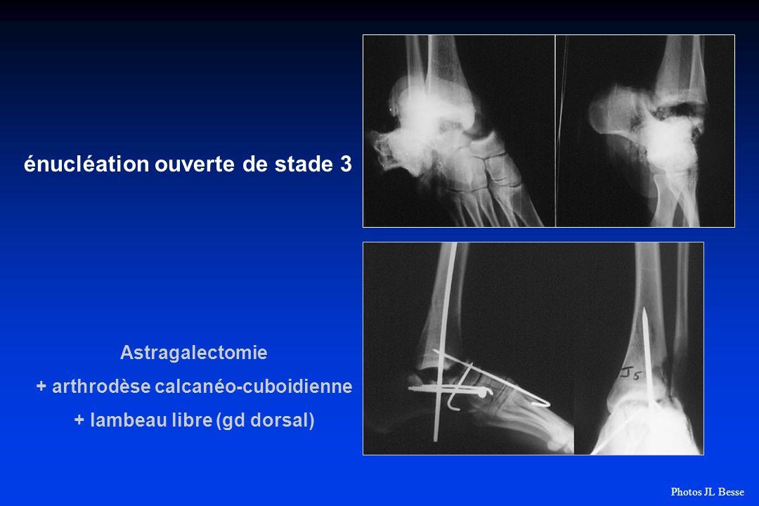 énucléation ouverte de stade 3 Astragalectomie + arthrodèse calcanéo-cuboidienne + lambeau libre (gd dorsal) Photos JL Besse