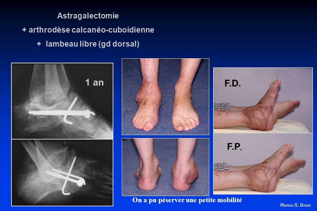 F.D.. F.P. 1 an Astragalectomie + arthrodèse calcanéo-cuboidienne + lambeau libre (gd dorsal) On a pu péserver une petite mobilité Photos JL Besse