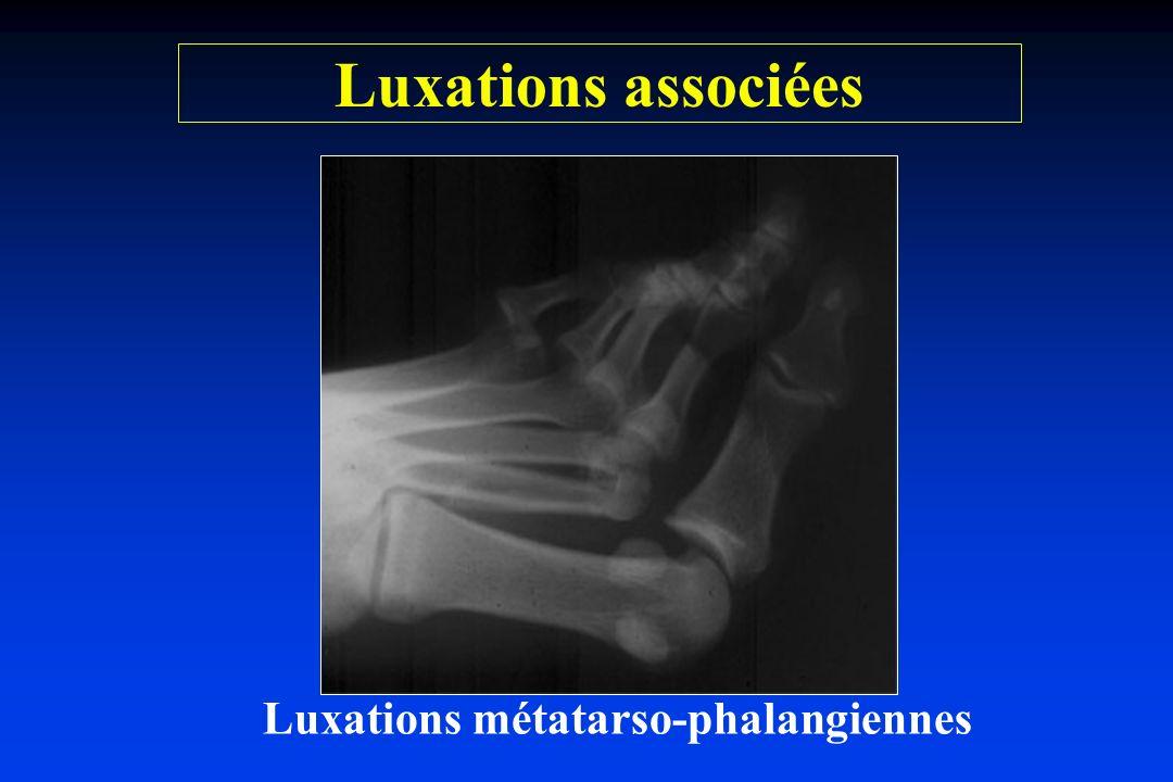 Luxations métatarso-phalangiennes Luxations associées