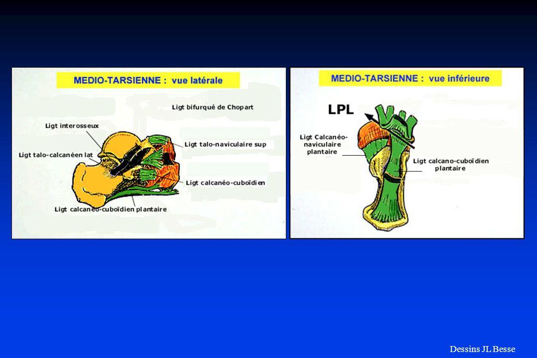 Luxations médio-tarsiennes (Chopart) 4 formes de luxations : internes externes plantaires dorsales Luxation externe Luxation interne