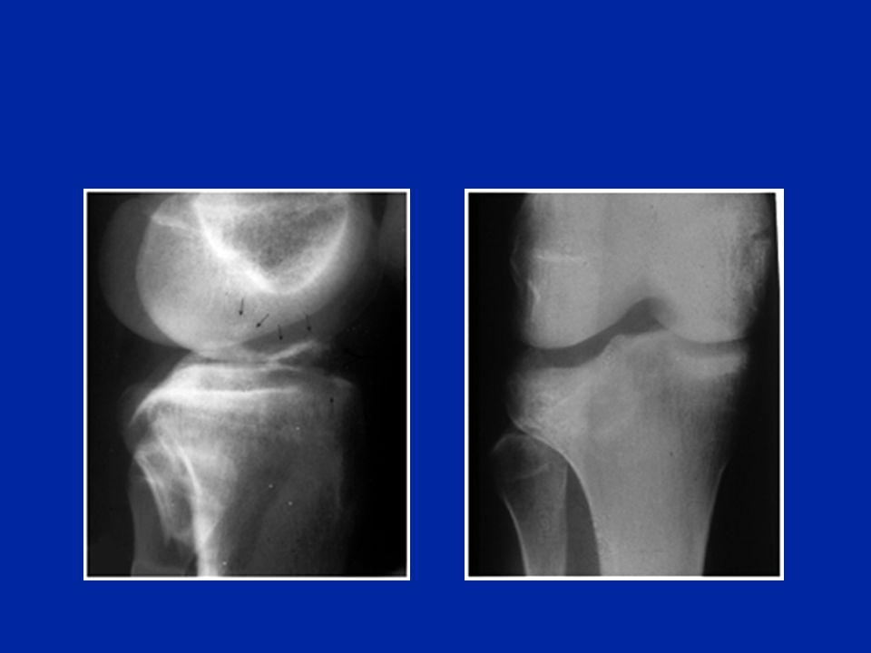Fractures de lextrémité Supérieure du tibia chez lenfant Photo F. Chotel