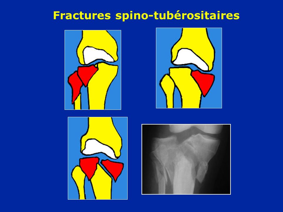 Fractures spino-tubérositaires
