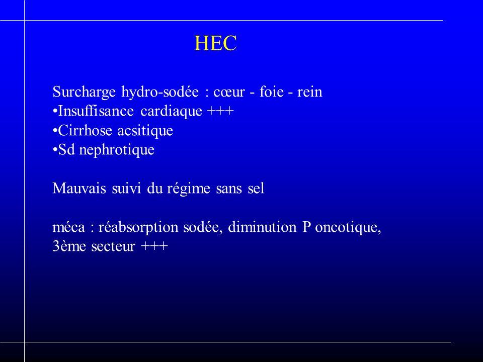 HEC Surcharge hydro-sodée : cœur - foie - rein Insuffisance cardiaque +++ Cirrhose acsitique Sd nephrotique Mauvais suivi du régime sans sel méca : ré