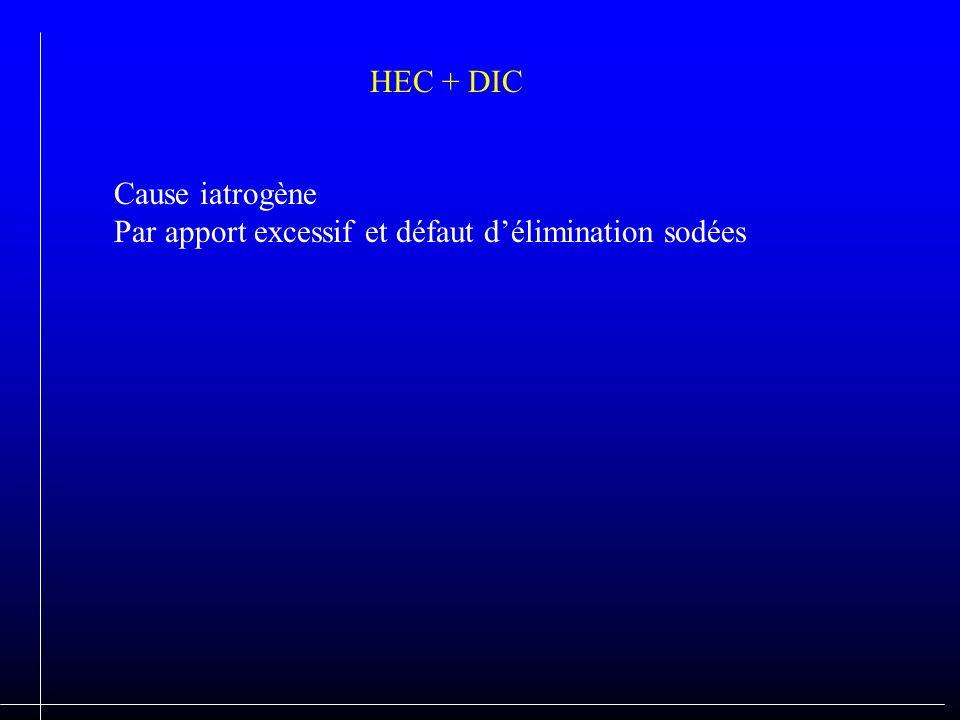 HEC + DIC Cause iatrogène Par apport excessif et défaut délimination sodées