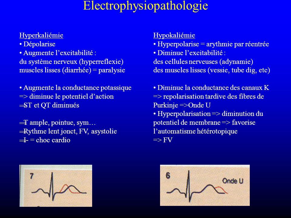 Electrophysiopathologie Hyperkaliémie Dépolarise Augmente lexcitabilité : du système nerveux (hyperreflexie) muscles lisses (diarrhée) = paralysie Aug
