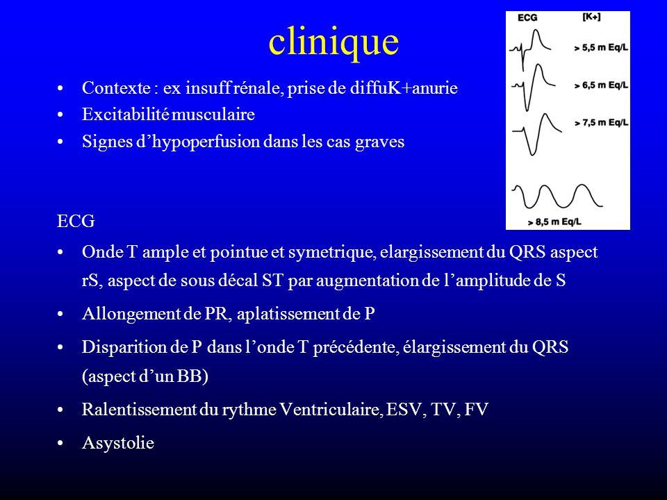 clinique Contexte : ex insuff rénale, prise de diffuK+anurie Excitabilité musculaire Signes dhypoperfusion dans les cas graves ECG Onde T ample et poi