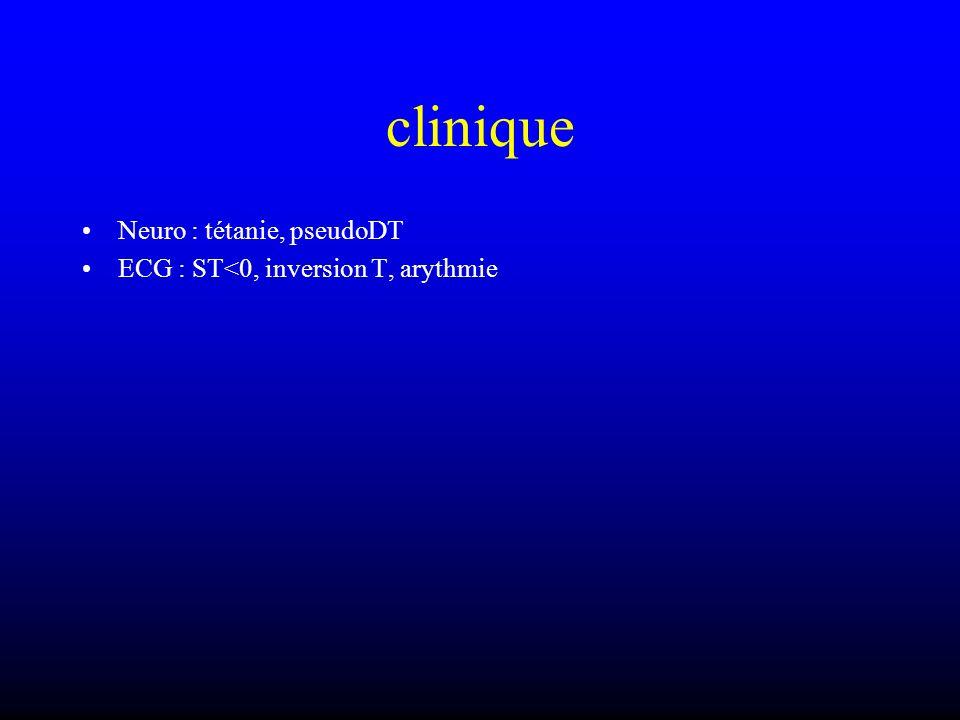 clinique Neuro : tétanie, pseudoDT ECG : ST<0, inversion T, arythmie