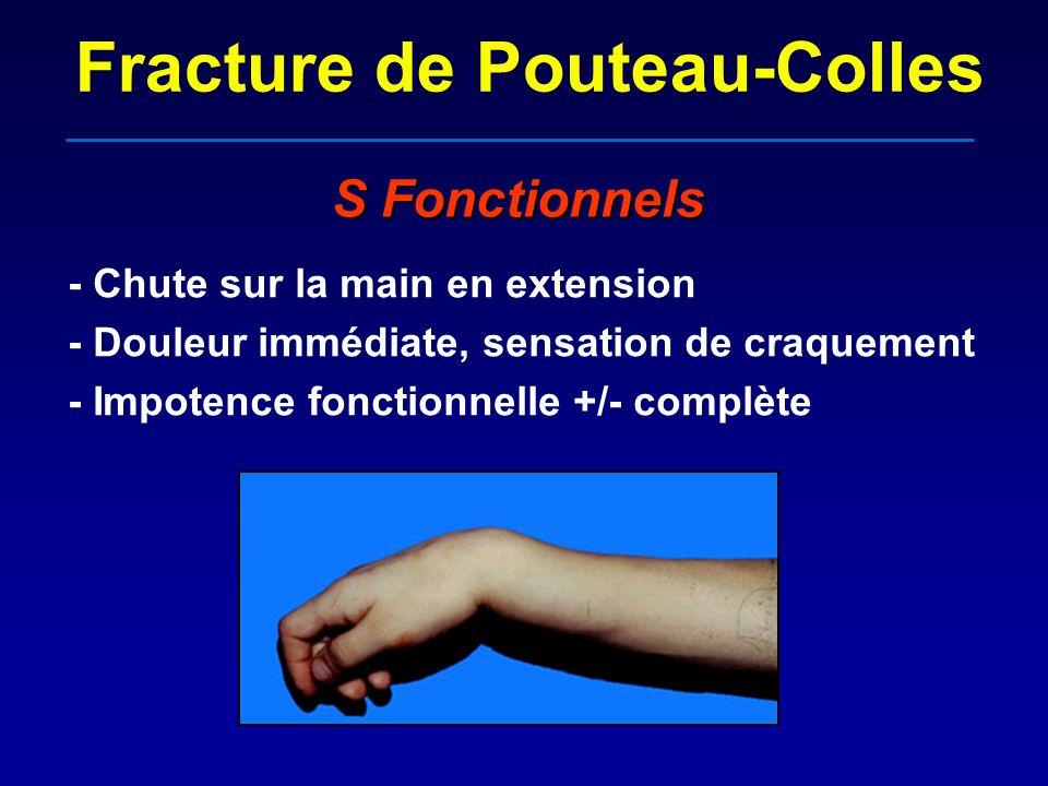 Fracture de Pouteau-Colles S Fonctionnels - Chute sur la main en extension - Douleur immédiate, sensation de craquement - Impotence fonctionnelle +/-