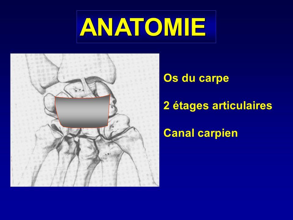 Fracture du scaphoïde carpien Mécanisme : hyper-extension +/- inclinaison radiale appuyée