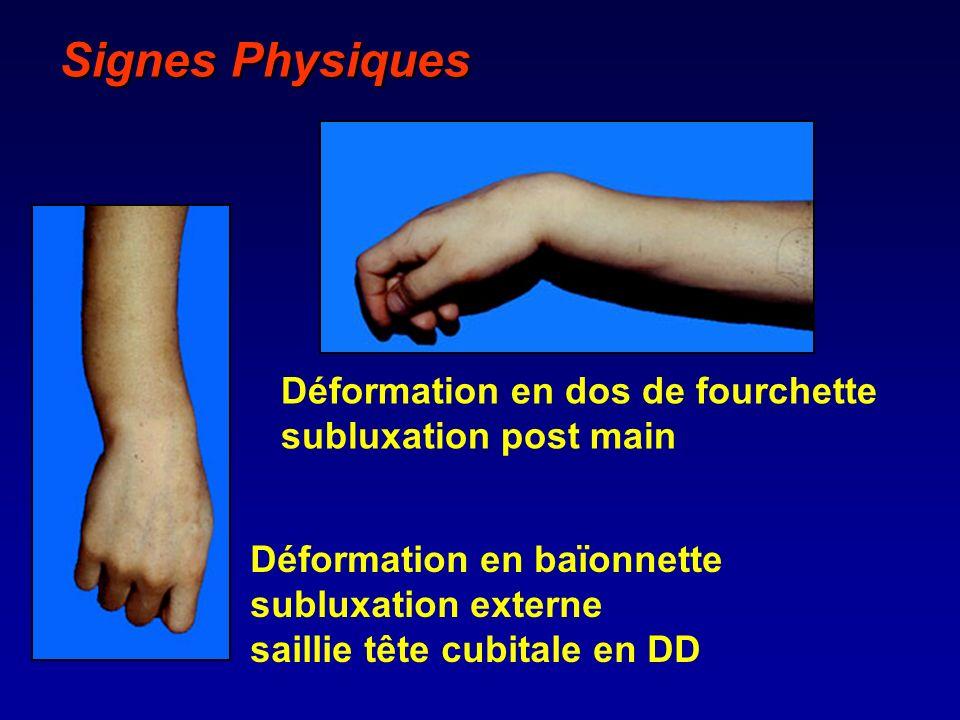 Signes Physiques Déformation en baïonnette subluxation externe saillie tête cubitale en DD Déformation en dos de fourchette subluxation post main