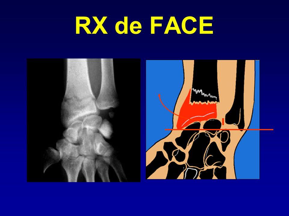 RX de FACE