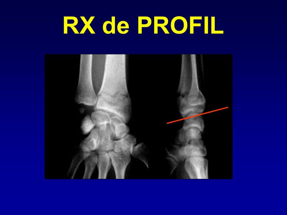 RX de PROFIL