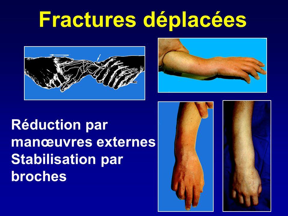 Fractures déplacées Réduction par manœuvres externes Stabilisation par broches