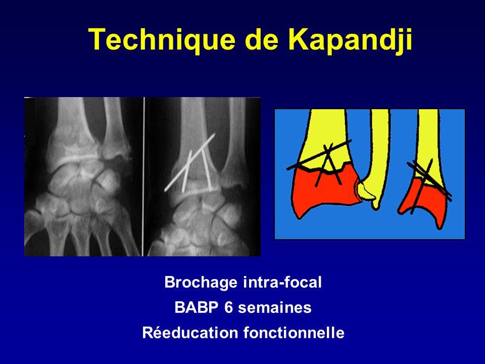 Technique de Kapandji Brochage intra-focal BABP 6 semaines Réeducation fonctionnelle