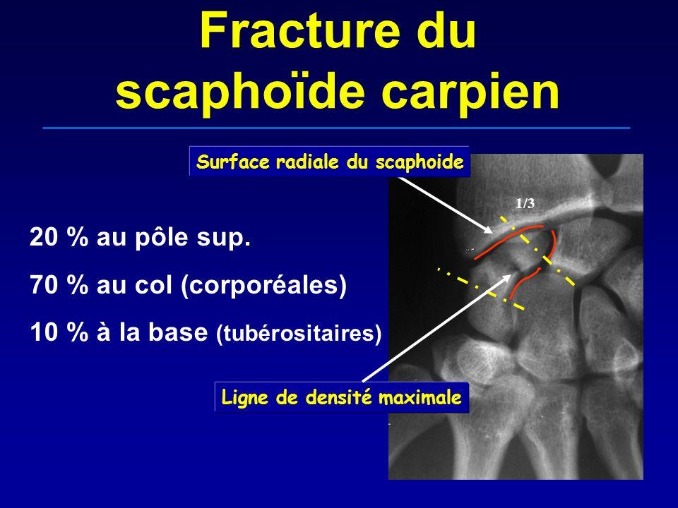 Fracture du scaphoïde carpien 20 % au pôle sup. 70 % au col (corporéales) 10 % à la base (tubérositaires) 1/3 Ligne de densité maximale Surface radial