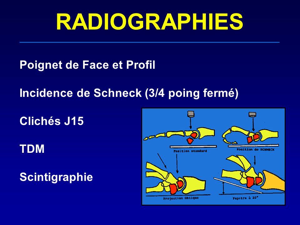 RADIOGRAPHIES Poignet de Face et Profil Incidence de Schneck (3/4 poing fermé) Clichés J15 TDM Scintigraphie
