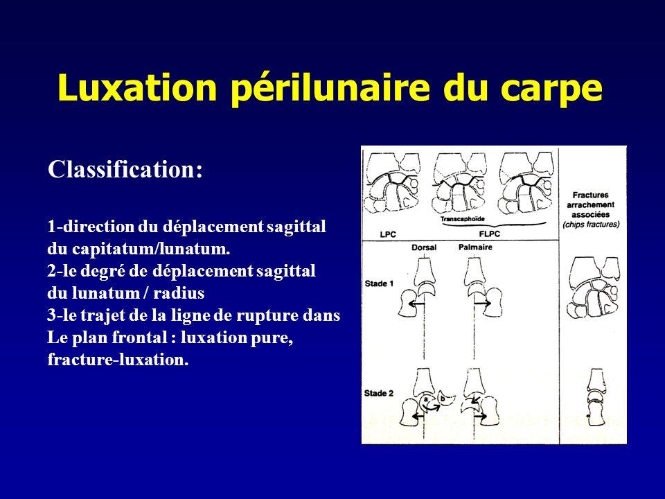 Luxation périlunaire du carpe Classification: 1-direction du déplacement sagittal du capitatum/lunatum. 2-le degré de déplacement sagittal du lunatum