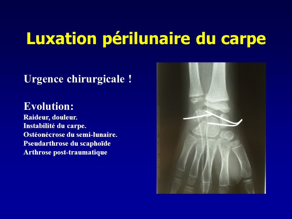 Luxation périlunaire du carpe Urgence chirurgicale ! Evolution: Raideur, douleur. Instabilité du carpe. Ostéonécrose du semi-lunaire. Pseudarthrose du