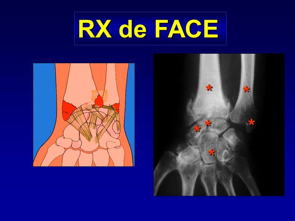 Complications Nécrose avasculaire : 30 % des fractures du pôle supérieur Pseudarthrose