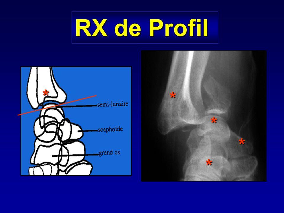 RX de Profil * * * * *