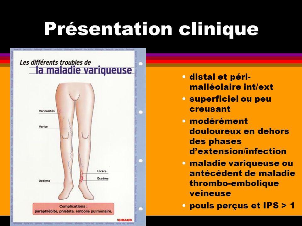 Présentation clinique distal et péri- malléolaire int/ext superficiel ou peu creusant modérément douloureux en dehors des phases dextension/infection
