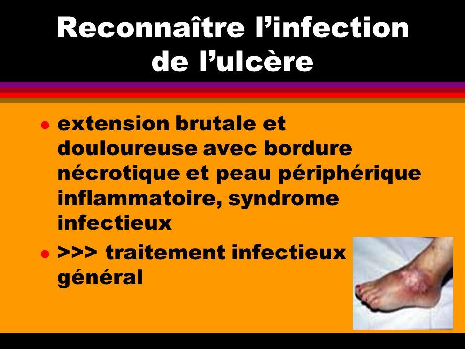 Reconnaître linfection de lulcère l extension brutale et douloureuse avec bordure nécrotique et peau périphérique inflammatoire, syndrome infectieux l